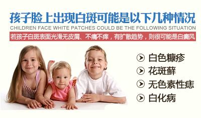 小孩脸上有白斑怎么办?